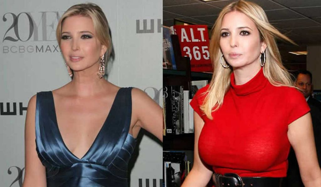 ivanka trump breast size