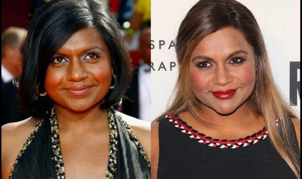 mindy kaling nose job