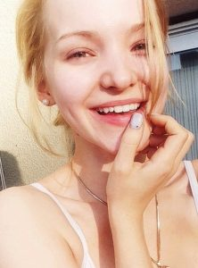 dove cameron lip injection