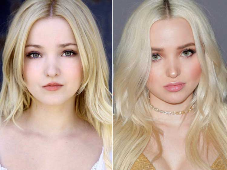dove cameron lip fillers