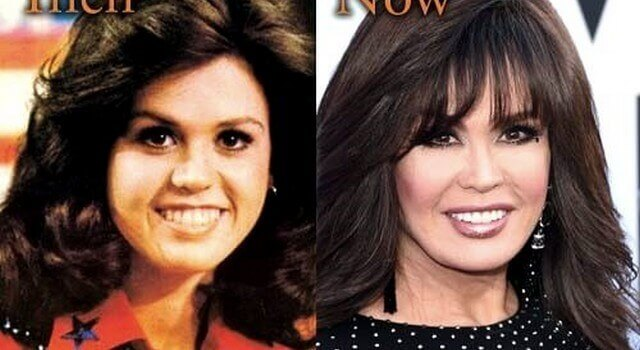 marie osmond lip