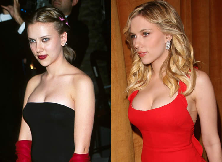 scarlett johansson boob reduction