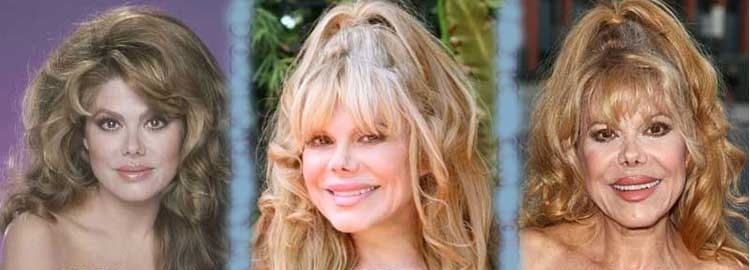 what happened to charo nose