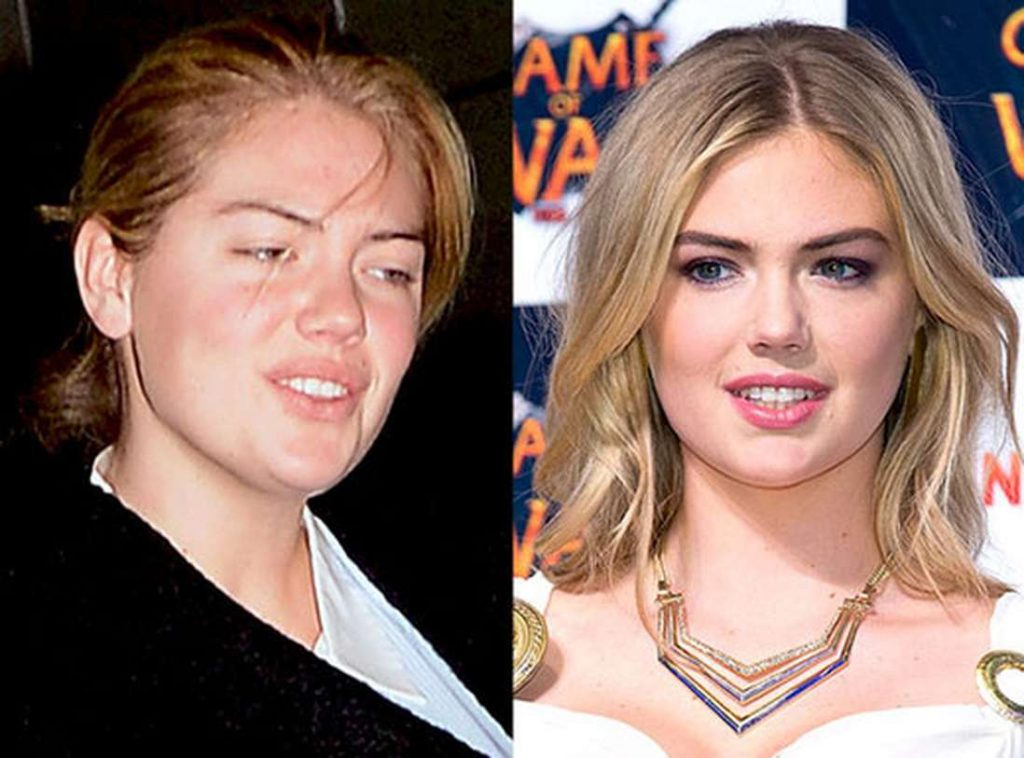 kate upton nose job