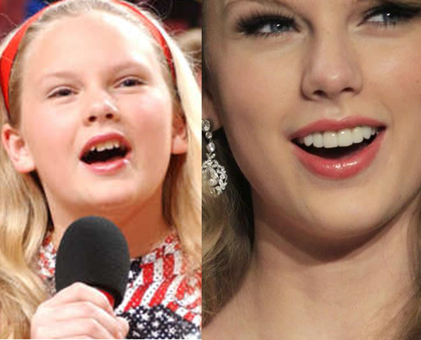 taylor swift teeth