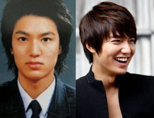lee minho plastic surgery