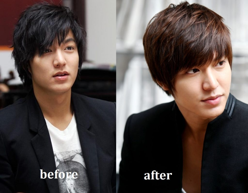 lee.min ho plastic surgery