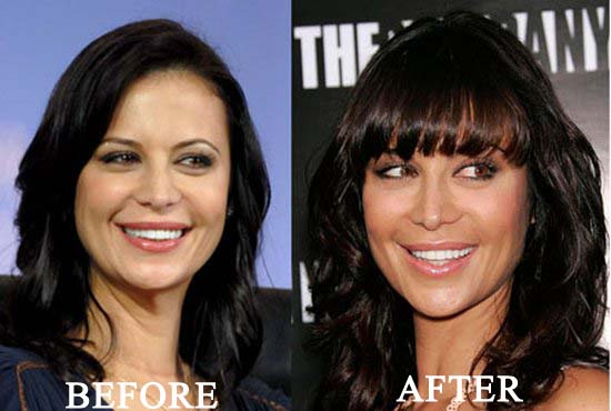 catherine bell implants