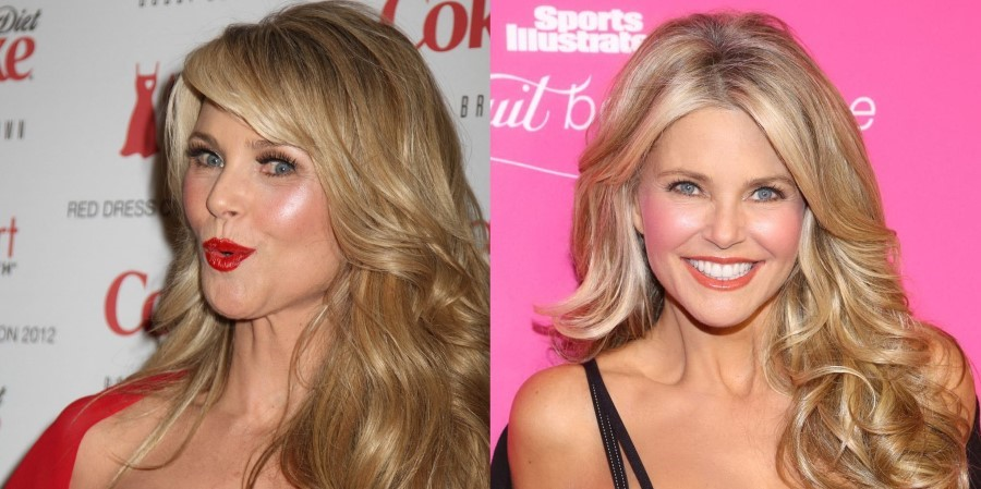 christie brinkley cosmetic surgery