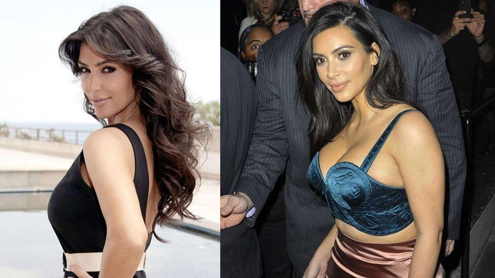 kim kardashian surgery