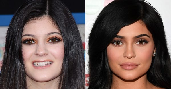 kylie jenner nose job