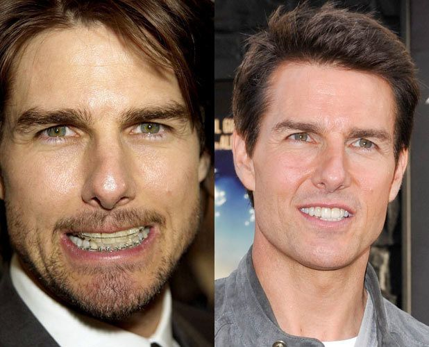 tom cruise new face