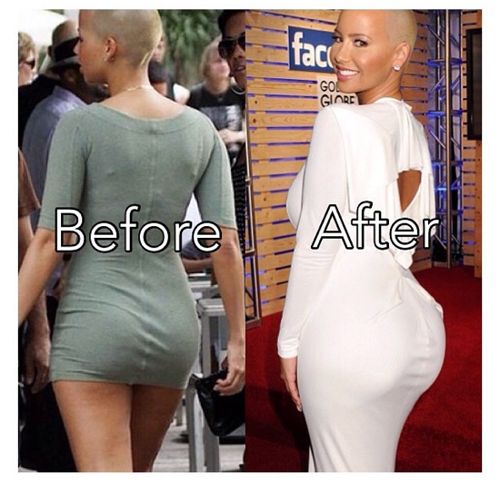 amber rose breast implants