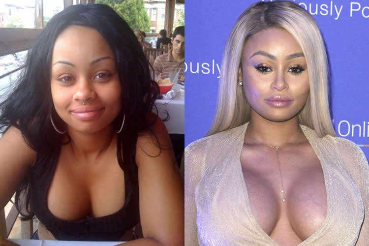 blac chyna implants