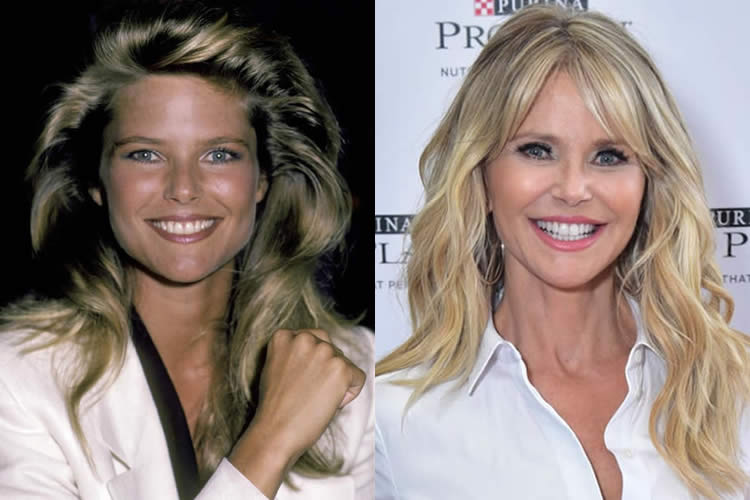 christie brinkley face lift