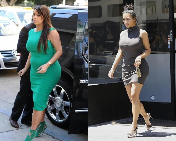 kim kardashian before surgery