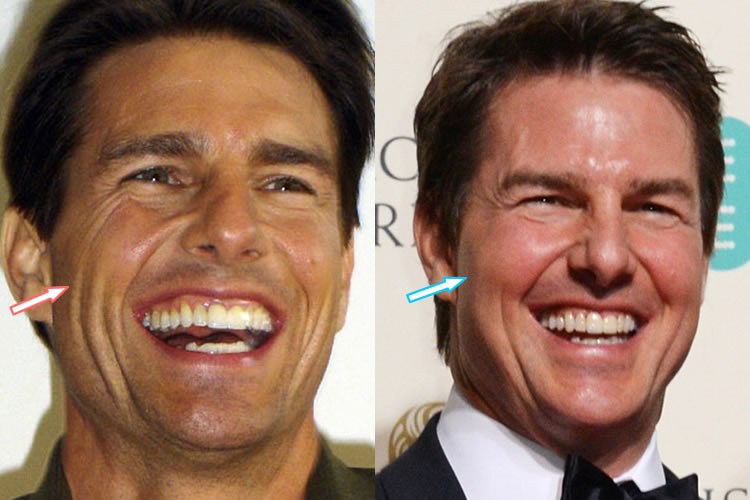 tom cruise face lift